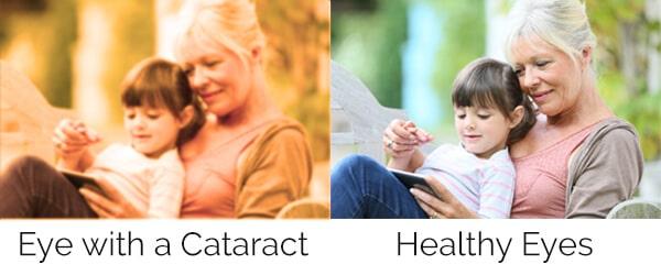 Cataract Surgery Cleveland