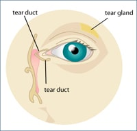 Dry Eye Syndrome Cleveland