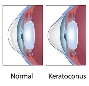 Keratoconus Ohio