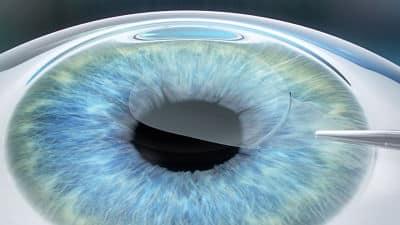 ReLEx SMILE Eye Surgery Cleveland
