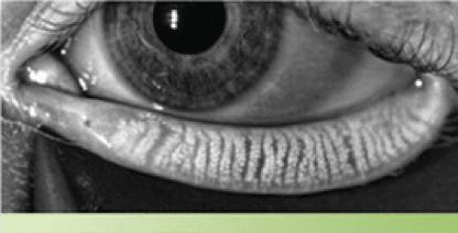 Dry Eye Treatment at Eye Clinics in Michigan