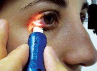 Dry Eye Syndrome Symptoms and Treatment